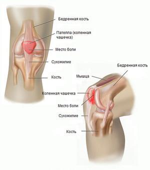 articulația genunchiului doare din ghemuțe ce să faci cu artrita degetelor