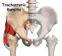 de ce doare articulația inghinală