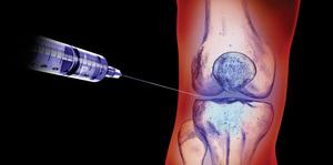 medicamente injectate în articulație pentru ungere bicicleta și artroza genunchiului