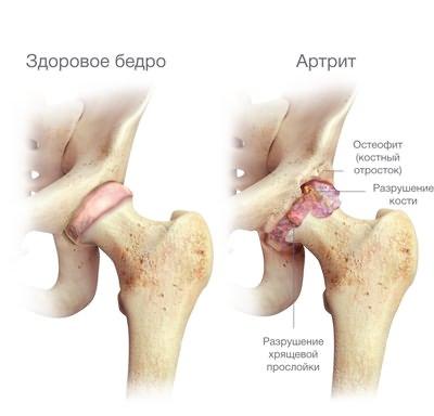 de ce durează articulația șoldului la bărbați